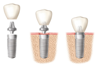 Dental Implants Boynton Beach florida