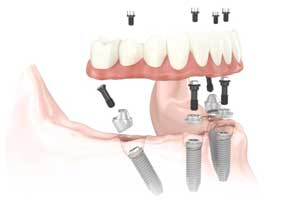 Implant Dentist near me Boynton Beach Florida