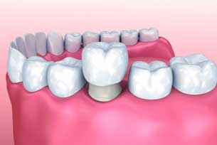 Dental Crowns Boynton Beach Florida