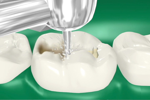 Throwing light on Dental Fillings | Boynton Beach, FL